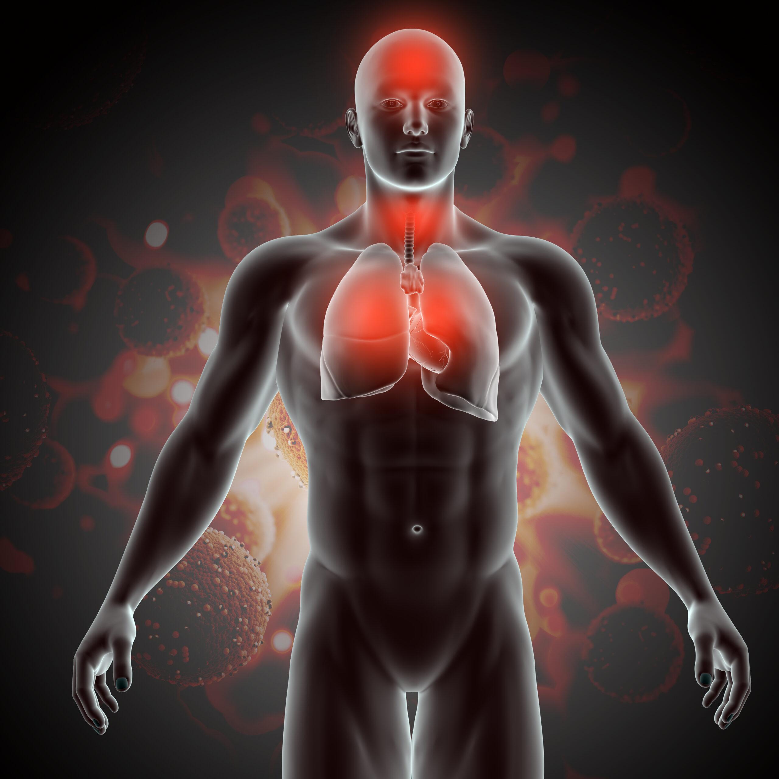 Akciğer Kanseri Ölüm Nedenleri